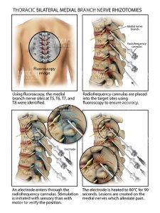 Surgeons deaden nerves to alleviate severe back pain