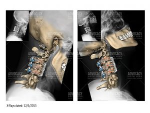 Colorized radiology of the upper spine depicting the fixation.
