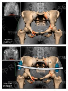 Enhanced radiology depicting hip injuries