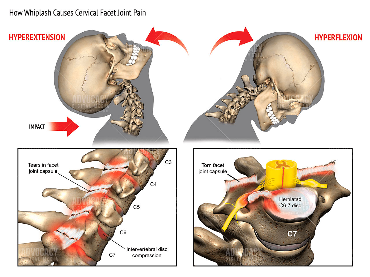 Image result for cervical facet joint pain