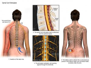 escribed how a spinal cord stimulator was placed into plaintiff